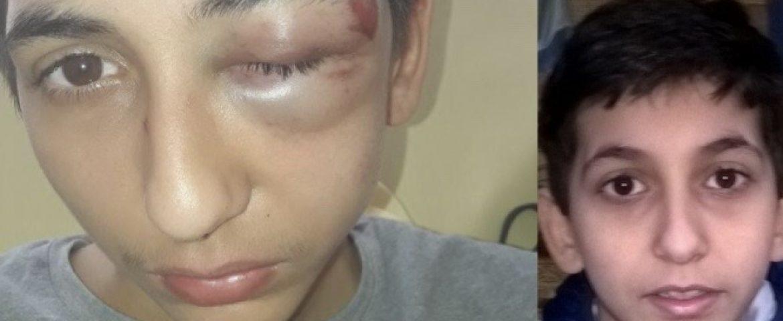 Pariz : Srpski dečak teško povređen posle privođenja. Protesti građana protiv policije