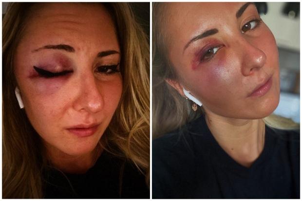 Francuska: Napadnuta i pretučena studentkinja jer je nosila suknju